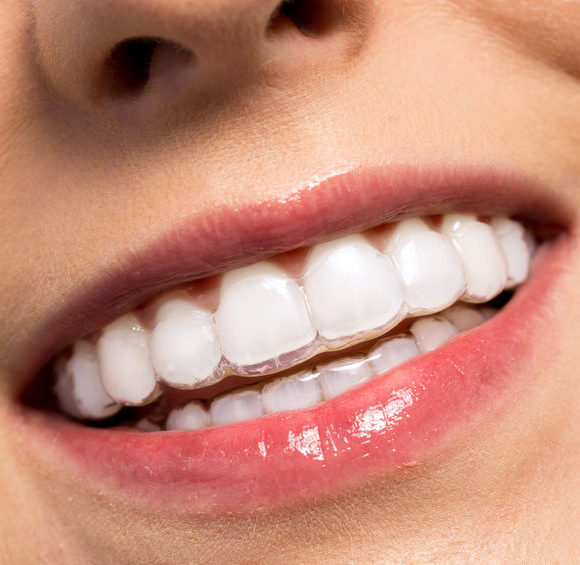 Orthodontics – Invisalign