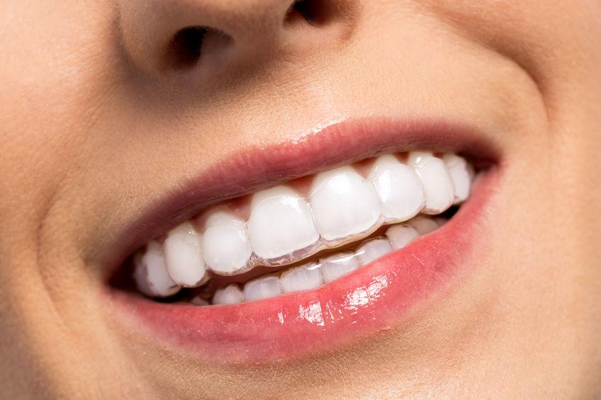 Orthodontics – Invisalign