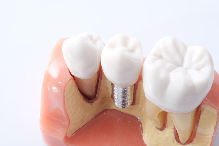 Tooth Replacement (Implants, Bridges, Dentures)